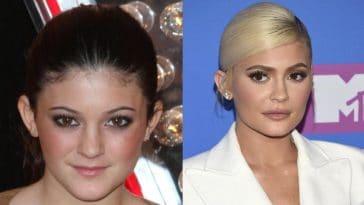 Ces célébrités avant et après les opérations de chirurgie esthétique