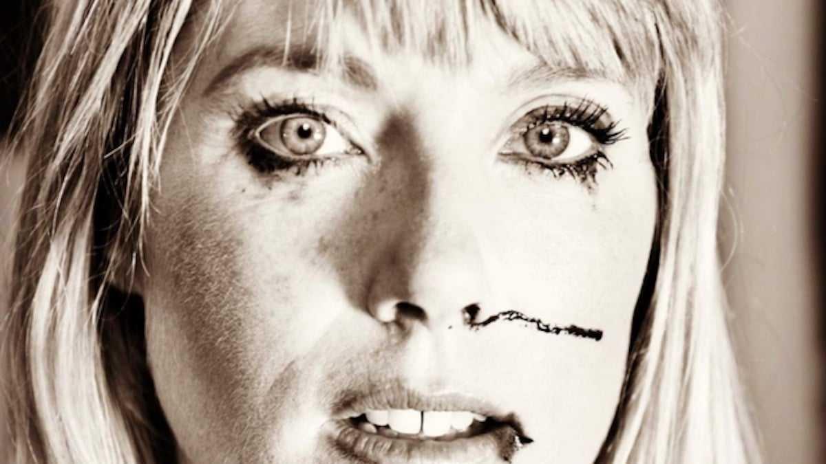 Mélanie Page poste une photo d'elle le visage en sang, elle inquiète les internautes