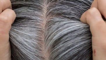 Complexé par vos cheveux gris ? voici 5 méthodes naturelles pour les faire disparaitre !